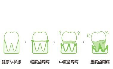 健康な状態。軽度歯周病。中度歯周病。重度歯周病。